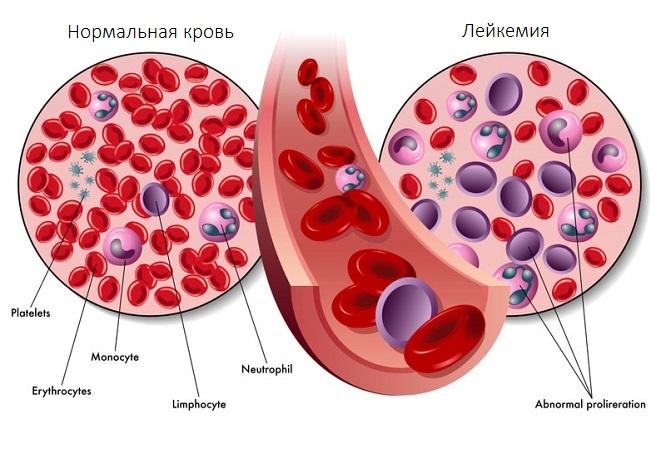 Признаки белокровия в крови взрослых людей