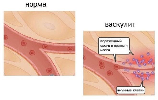 Признаки поражения иммунной системы человека васкулитом