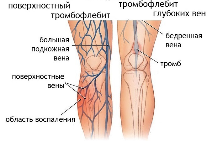 Разновидности тромбофлебита нижних конечностей