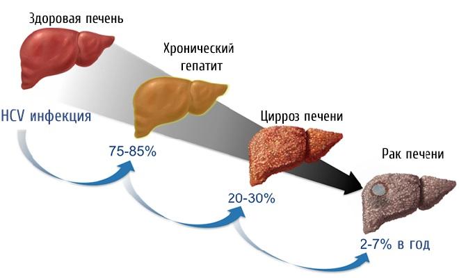 Стадии перехода гепатита в рак печени
