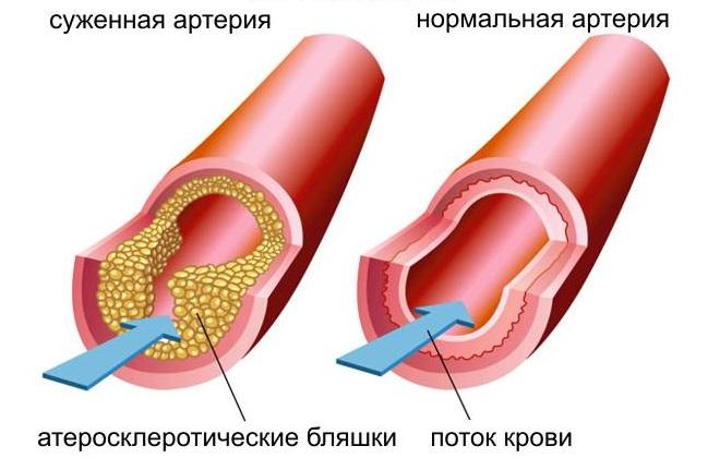 Суженная и нормальная артерия ноги