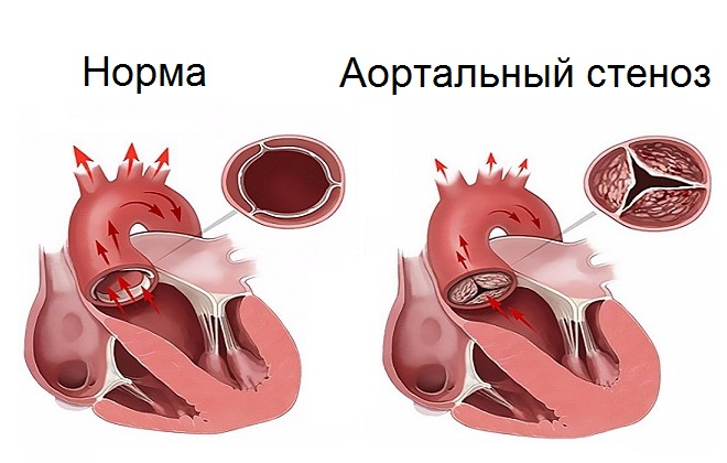 Аортальный стеноз: аортального клапана, устья аорты, лечение без ...