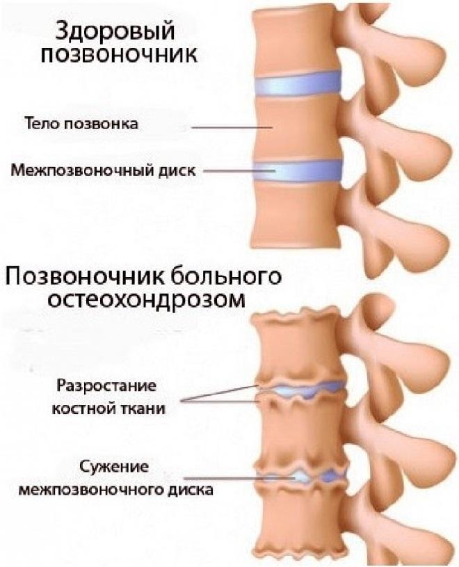 Симптомы остеохондроза шеи
