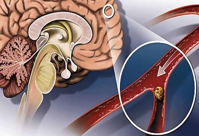 Холестериновый шарик в сосуде головного мозга человека