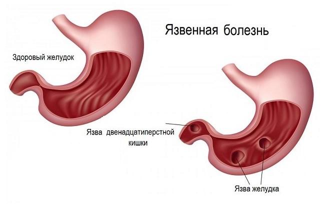 Желудок здорового и больного человека