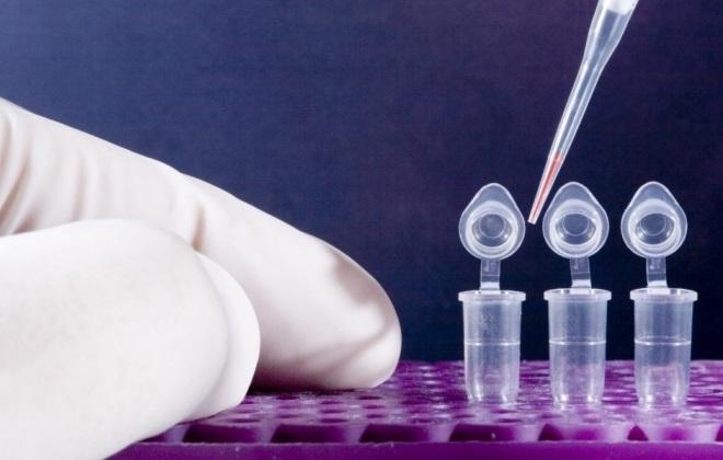 ПЦР или ИФА – что лучше и какие патологии позволяют выявить оба метода?