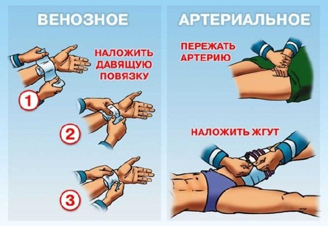 Остановка венозных и артериальных кровотечений