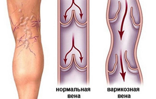 Внутренний варикоз на ногах: симптомы, лечение, внутренних вен, нижних конечностей