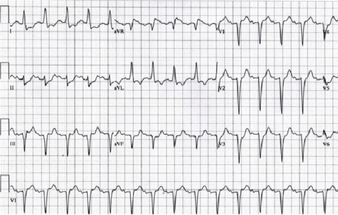 ЭКГ пациента с ишемической болезнью сердца