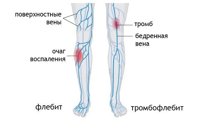 Нарисованные ноги с красными и синими полосками