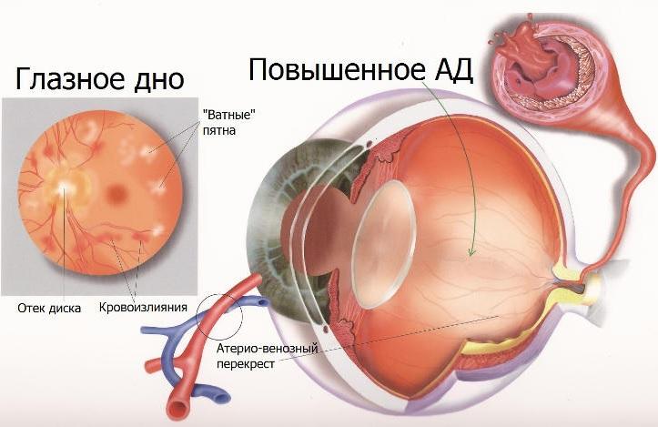 Повышенное артериальное давление глазного дна
