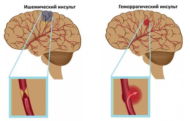 Разновидности инсульта головного мозга