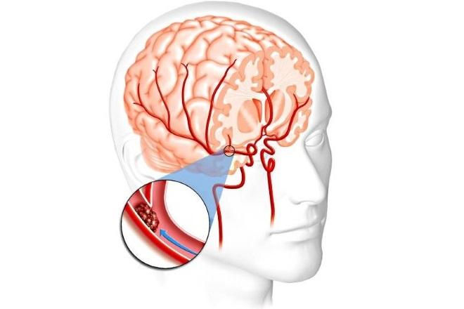 Сгусток крови в сосудах головного мозга