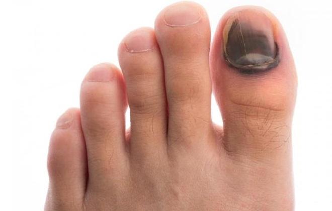 Синий палец ноги после ушиба
