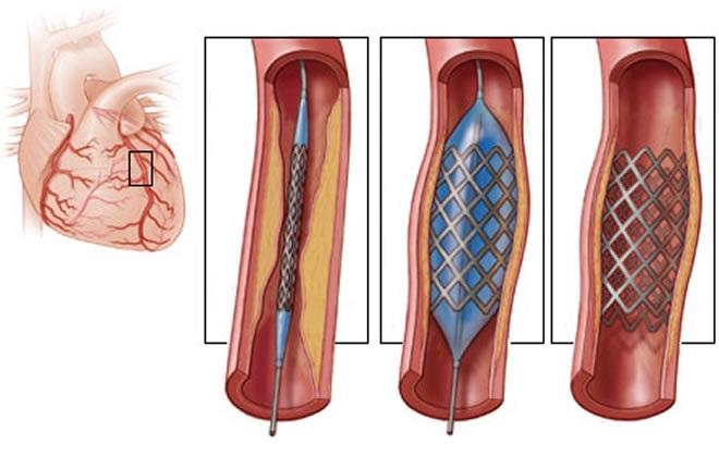 Дают или нет инвалидность после инфаркта миокарда, какую группу дают после стентирования