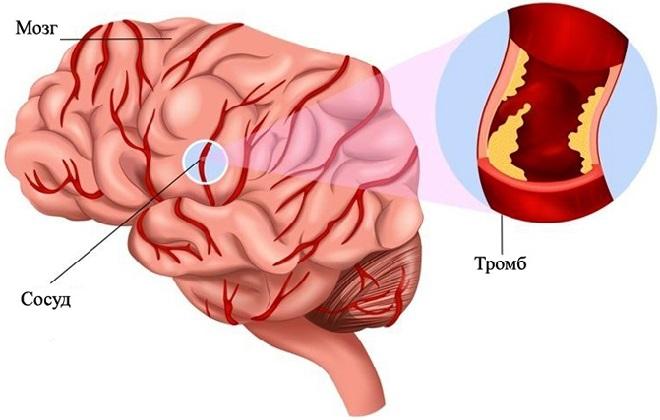Тромбоз головного мозга