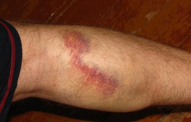Внутреннее кровотечение на ноге