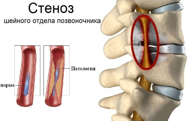 Заболевание кровеносной системы в области шеи