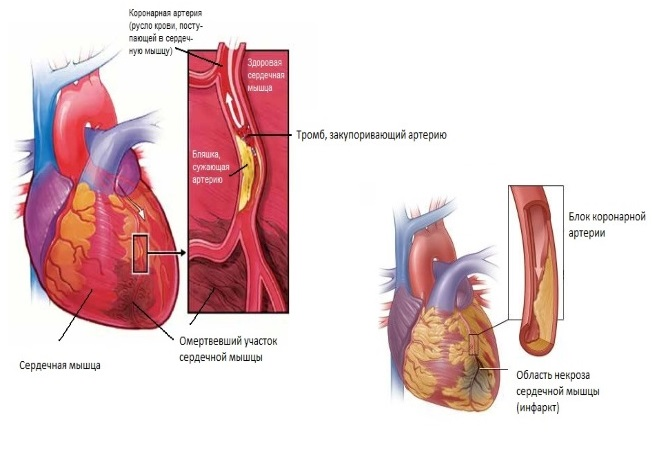 Закупорка коронарной артерии