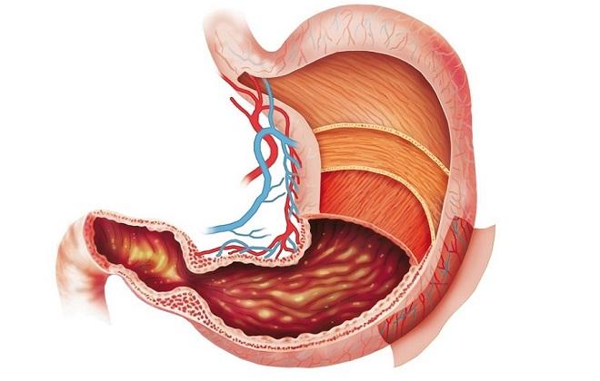 отечность слизистой желудка причины лечение