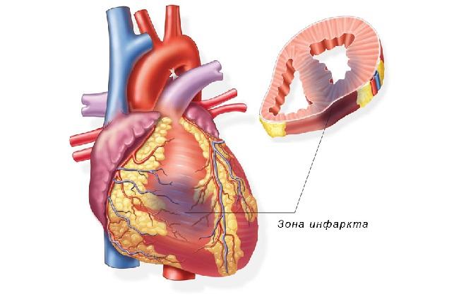 Зона инфаркта миокарда