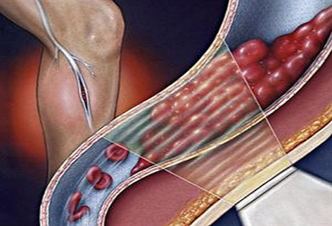 Оперативное вмешательство по удалению тромбов глубоких вен нижних конечностей