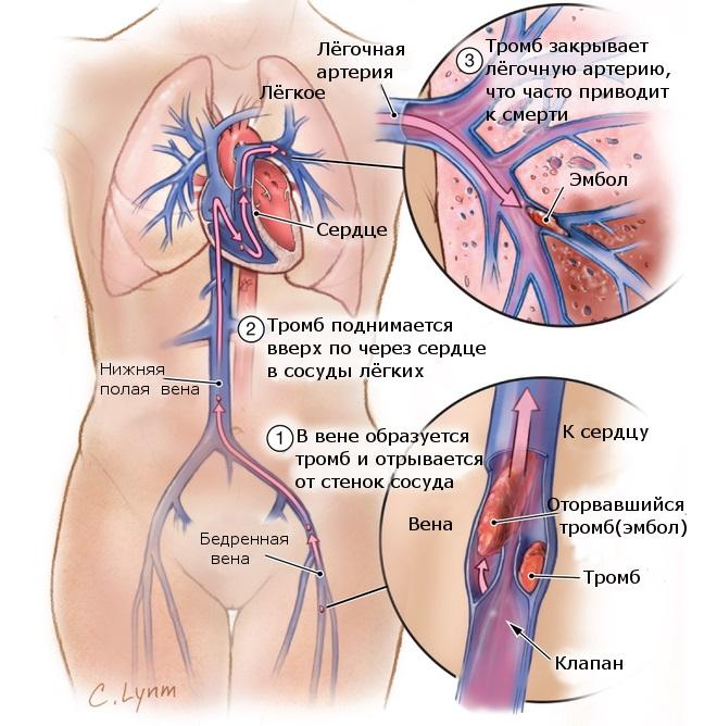 Помощь при тромбоэмболии