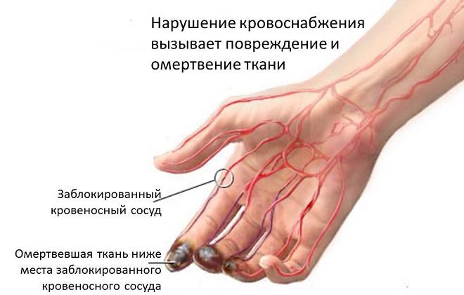 Системное иммунопатологическое воспалительное заболевание артерий
