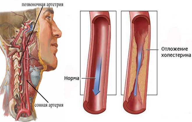 Стеноз или отложение холестерина на стенках артерий