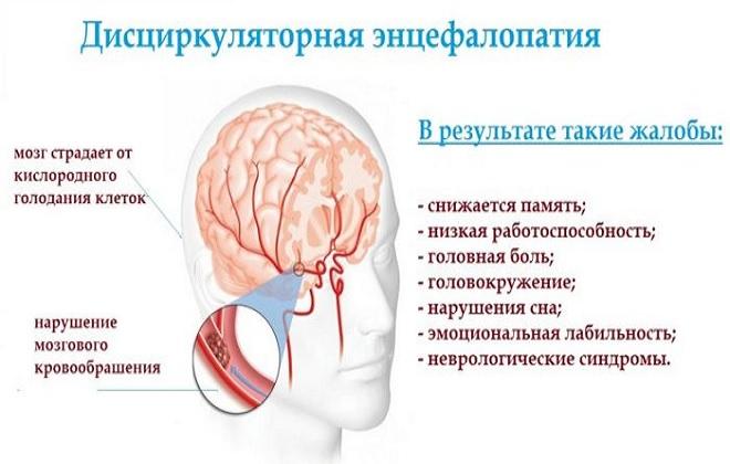 Жалобы при дисциркуляторной энцефалопатии