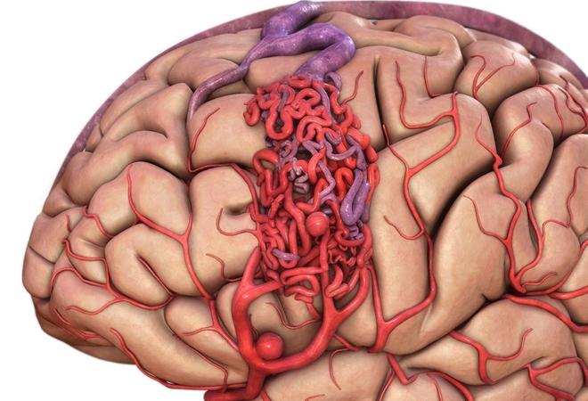 Нарушение деятельности мозна