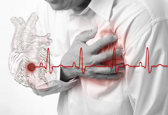 Инфаркт миокарда левого желудочка нижней и передней стенки