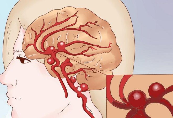Искривление сосудов головного мозга