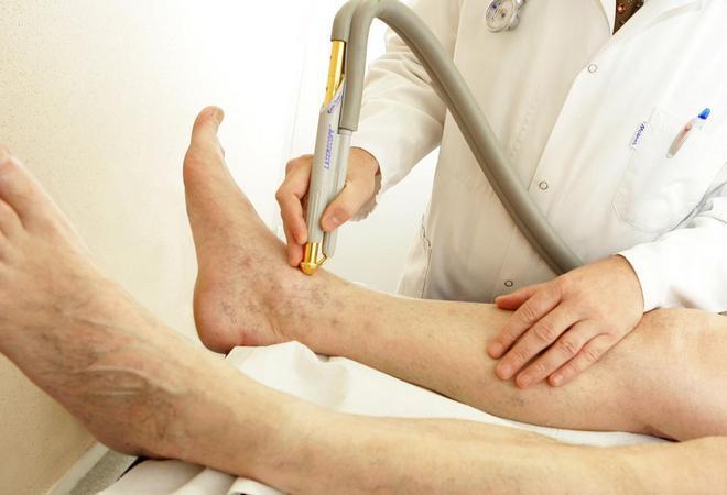 Ишемия нижних конечностей: симптомы, лечение сосудов, классификация