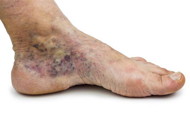 Острый тромбофлебит: вен нижних конечностей, лечение, симптомы