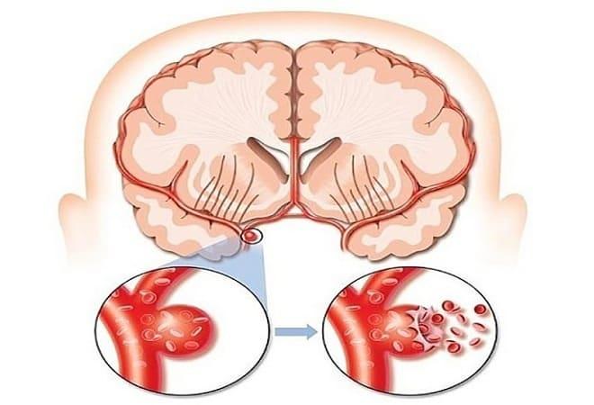 Аневризма сонной артерии