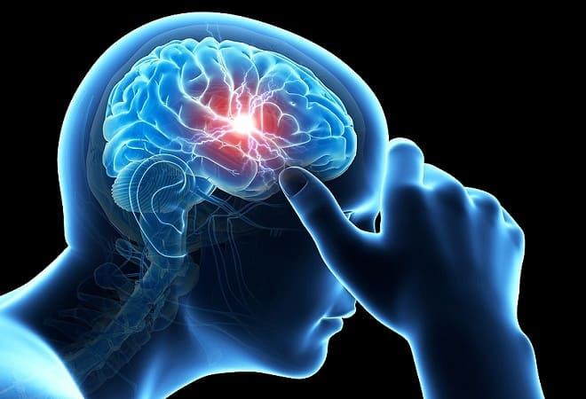 Тромбоз мозга