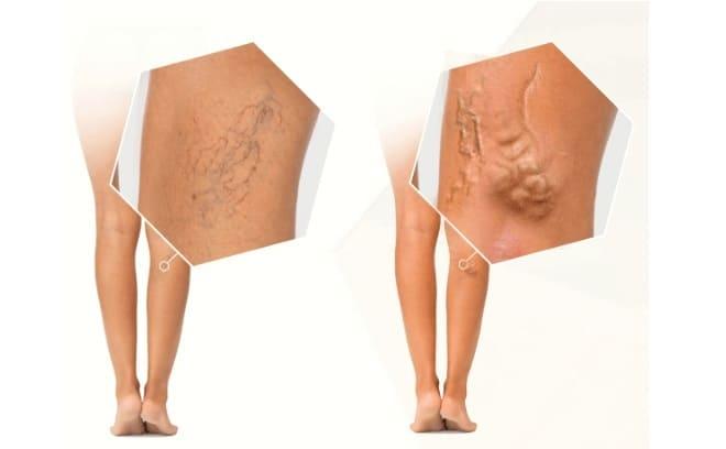 Осложнения варикозной болезни вен нижних конечностей