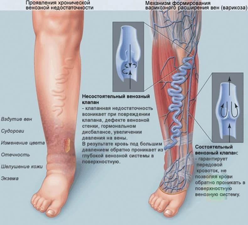 Механизм формирования варикоза и тромбофлебита