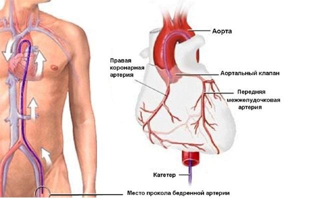 Место прокола бедренной артерии для установки кава-фильтра