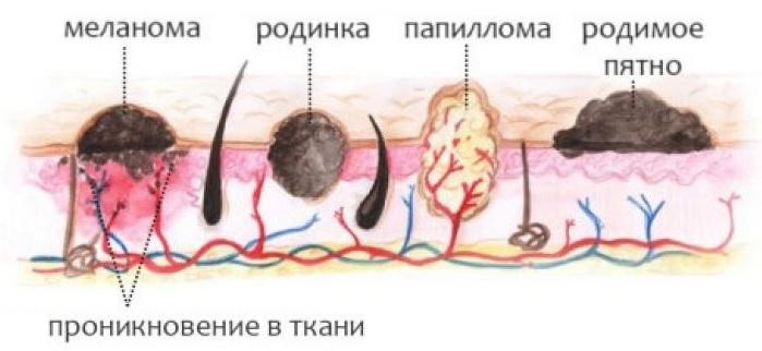 Картинки по запросу проникновение-в-папилломавируса-в-ткань