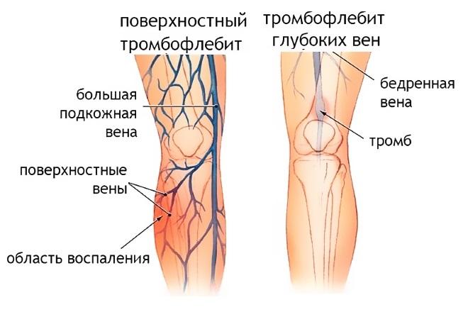 Разновидности тромбофлебита