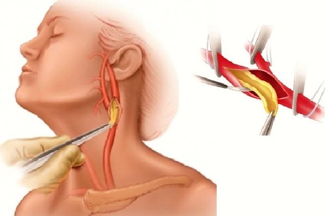 Удаление тромба в сонной артерии как метод лечения