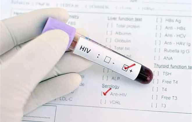 Анализ крови на ВИЧ
