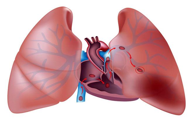 Аневризма артерии на легких