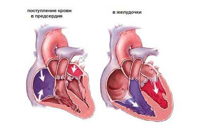 Аневризма сердечная