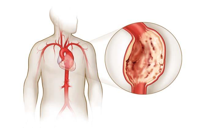 Аневризма левого желудочка сердца: прогноз после операции, лечение