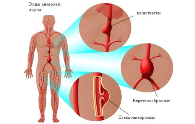 Артерия в бедре