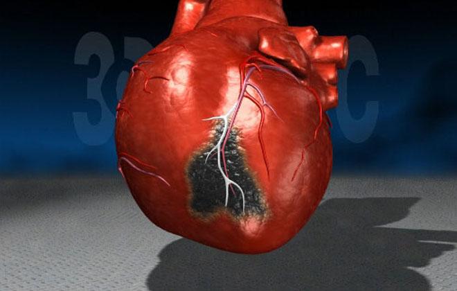 Болезнь в сердце