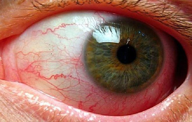 Глаз с воспаленными капиллярами